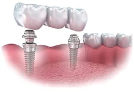 implant-supported bridge