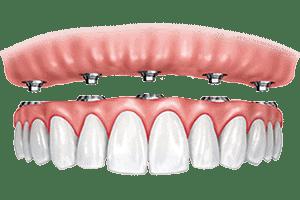 snap in denture